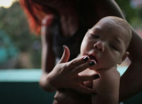 Zika Virus Officially Confirmed As Cause Of Microcephaly Birth Defect: CDC