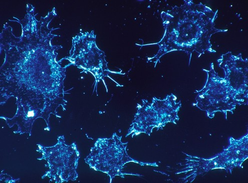 CAR-T Safety Concerns A Bane To A Promising Cancer Therapy [Video]