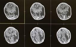 Deep Brain Stimulation Advances