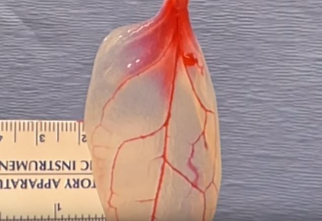 Spinach leaves can carry blood to grow human tissues