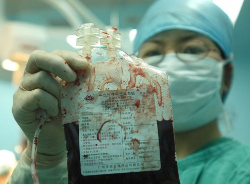 Transplanted Umbilical Cord Blood Cures Leukemia and 80 Other Diseases