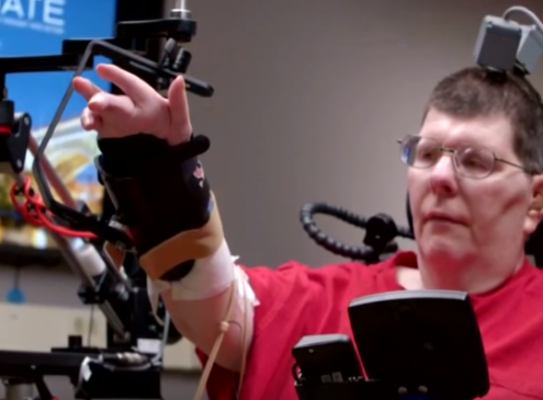 Case Western Reserve University Reveals How To Move Paralytic Arm Using The Mind