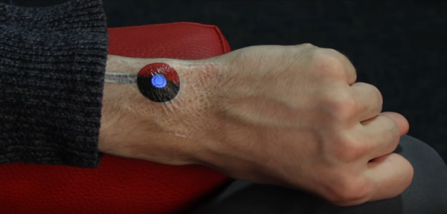 SkinMarks: E-Tattoos enables interactions on body landmarks