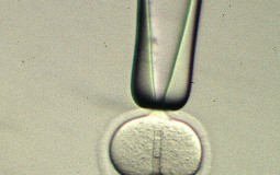 Nucleus Being Injected From A Micropipette