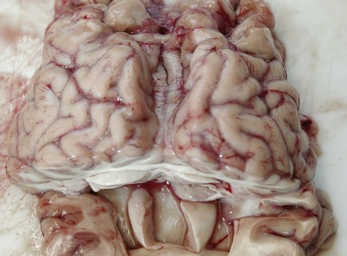 Brain Invading Worms Concern Experts; Outbreak Must Be Avoided [Video]