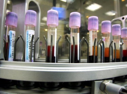 The Single Blood Test That Could Identify All The Viruses That Infected A Person [VIDEO]